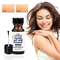 skin tag remover formula homeop
